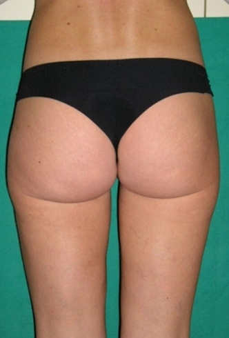 liposuzione glutei post intervento