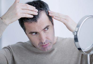 Diagnosi della perdita di capelli nell'uomo
