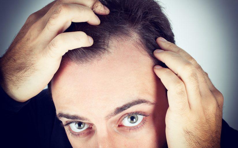 Shedding capelli