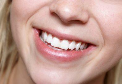 Vacanze dentali in Croazia