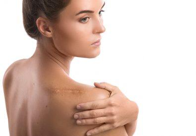 trattamento per rimuovere una cicatrice