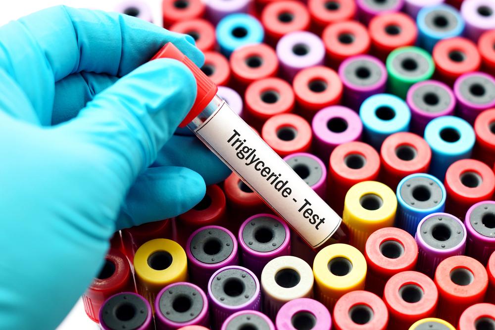 Ipertrigliceridemia