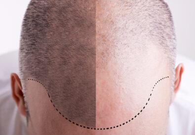 Protesi di capelli corti