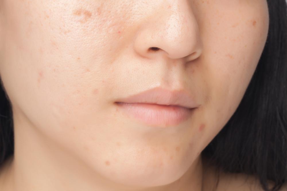 Un esempio di pelle grassa